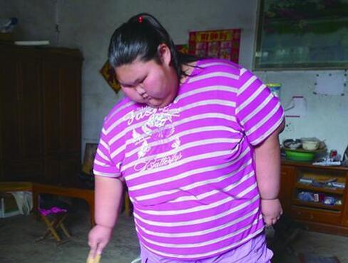 16岁女重330斤